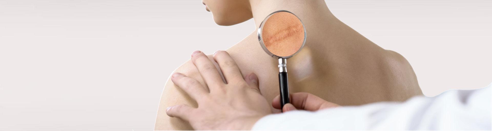 narbenbehandlung-plastische-chirurgie-b